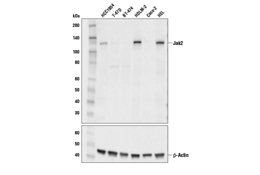 Western blot analysis of extracts from various cell lines using Jak2 (E4Y4D) Mouse mAb (upper) or β-Actin (D6A8) Rabbit mAb #8457 (lower).