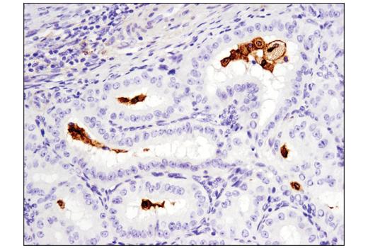 Monoclonal Antibody - GPNMB (E4D7P) XP® Rabbit mAb, UniProt ID Q14956, Entrez ID 10457 #38313 - Adhesion/Ecm
