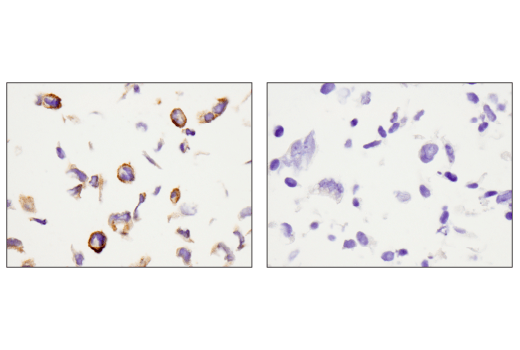Immunohistochemical analysis of paraffin-embedded U-2 OS cell pellet (left, positive) or Saos-2 cell pellet (right, negative) using Podoplanin (LpMab-12) Mouse mAb.