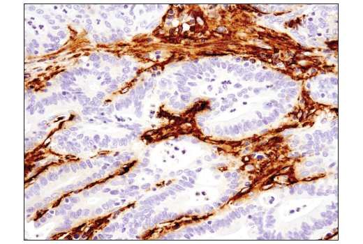 Immunohistochemical analysis of paraffin-embedded human colon carcinoma using Podoplanin (LpMab-12) Mouse mAb.