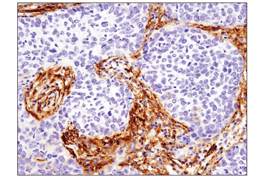 Immunohistochemical analysis of paraffin-embedded human endometrioid adenocarcinoma using Podoplanin (LpMab-12) Mouse mAb.