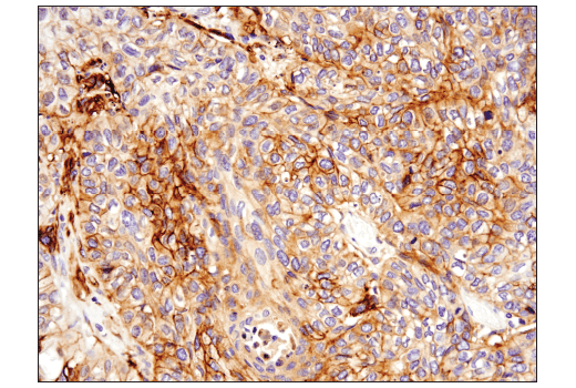 Immunohistochemical analysis of paraffin-embedded human squamous cell lung carcinoma using Podoplanin (LpMab-12) Mouse mAb.