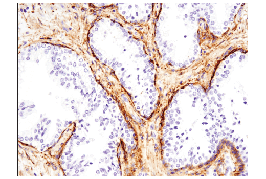 Immunohistochemical analysis of paraffin-embedded human prostate carcinoma using Podoplanin (LpMab-12) Mouse mAb.