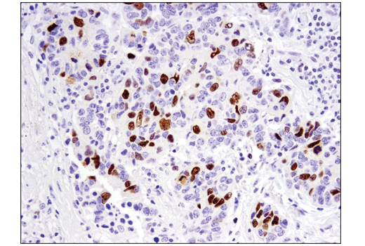 Immunohistochemical analysis of paraffin-embedded human non-small cell lung carcinoma using FoxM1 (D3F2B) Rabbit mAb.