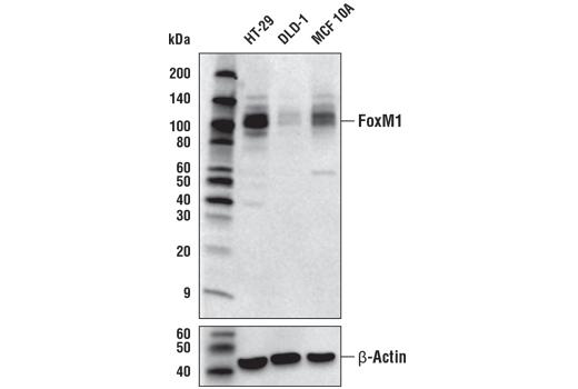 Cst Foxm1 D3f2b Rabbit Mab