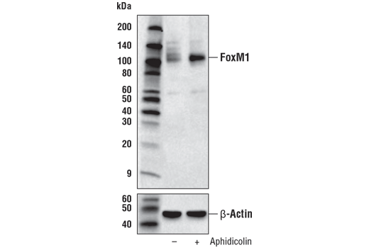 Western blot analysis of extracts from HeLa cells, untreated (-) or treated with Aphidicolin (2 μM, 24 hr; +), using FoxM1 (D3F2B) Rabbit mAb (upper) and β-actin (D6A8) Rabbit mAb #8457 (lower).
