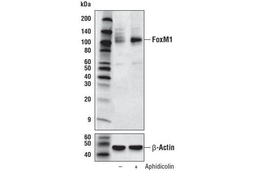 Monoclonal Antibody Immunohistochemistry Paraffin Response to Camp