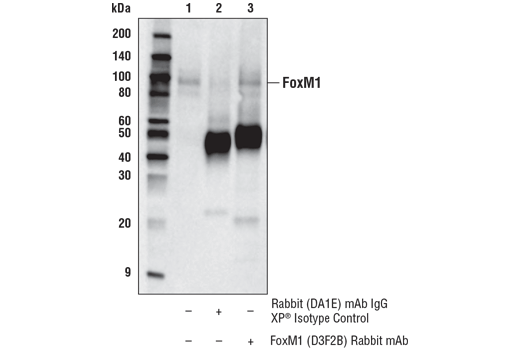 Immunoprecipitation Image 1: FoxM1 (D3F2B) Rabbit mAb