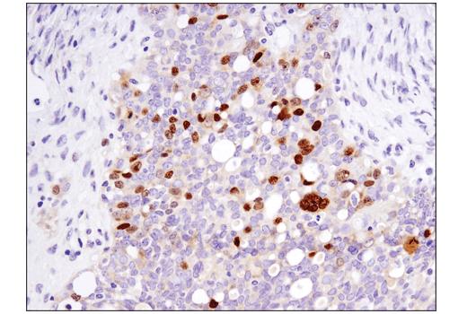 Immunohistochemical analysis of paraffin-embedded human serous papillary carcinoma of the ovary using FoxM1 (D3F2B) Rabbit mAb.