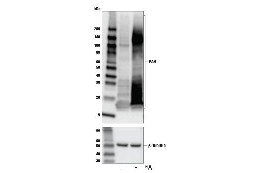 Monoclonal Antibody - Poly/Mono-ADP Ribose (E6F6A) Rabbit mAb - 100 µl #83732, Adpr