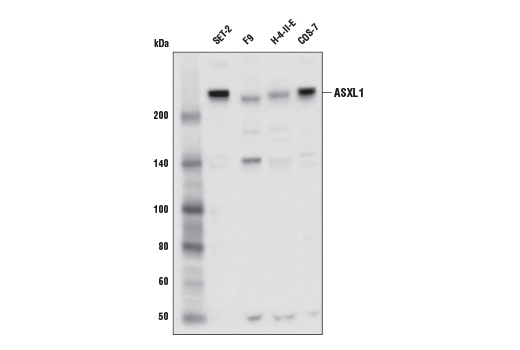 Monoclonal Antibody - ASXL1 (D1B6V) Rabbit mAb - Western Blotting, UniProt ID Q8IXJ9, Entrez ID 171023 #52519, Chromatin Regulation / Acetylation
