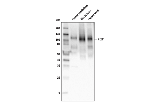 Western blot analysis of extracts from human cerebellum, mouse brain, and human heart using NCX1 (D3F3H) Rabbit mAb.