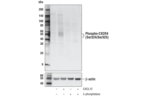 Western blot analysis of extracts from MOLT-4 cells, untreated (-) or treated (+) with combinations of the folowing treatments as indicated: CXCL12 (100 nM, 10 min), λ-phosphatase, using Phospho-CXCR4 (Ser324/Ser325) Antibody (upper) and β-actin (D6A8) Rabbit mAb #8457 (lower).