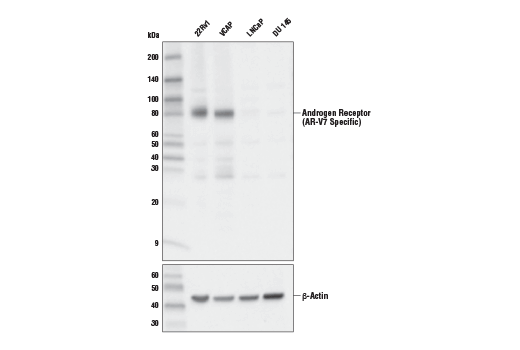 Western blot analysis of extracts from various cell lines using Androgen Receptor (AR-V7 Specific) (E3O8L) Rabbit mAb (upper) and Β-Actin (D6A8) Rabbit mAb #8457 (lower). Signal corresponding to the androgen receptor V7 isoform is detected in 22Rv1 and VCAP cells (AR-V7-positive), but is not detected in LNCaP and DU 145 cells (AR-V7-negative), confirming specificity of the antibody.