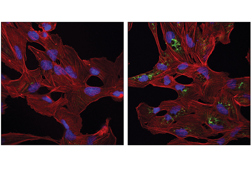 Confocal immunofluorescent analysis of 786-O cells, untreated (left) or treated with STF-66247 (1 μM, 18 hr; right), using Phospho-SQSTM1/p62 (Ser403) (D8D6T) Rabbit mAb (green). Actin filaments were labeled with DyLight™ 554 Phalloidin #13054 (red). Blue pseudocolor = DRAQ5<sup>®</sup> #4084 (fluorescent DNA dye).
