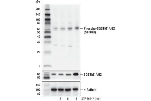 Western blot analysis of extracts from 786-O cells, untreated (-) or treated with STF-66247 (1 μM, indicated times), using Phospho-SQSTM1/p62 (Ser403) (D8D6T) Rabbit mAb (upper), total SQSTM1 (D5L7G) Mouse mAb #88588 (middle), or α-Actinin (D6F6) XP<sup>®</sup> Rabbit mAb #6487 (lower).