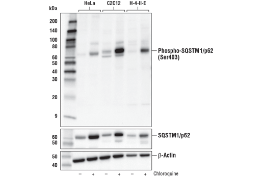 Western blot analysis of extracts from HeLa, C2C12, and H-4-II-E cells, untreated (-) or treated with Chloroquine #14774 (50 μM, overnight; +), using Phospho-SQSTM1/p62 (Ser403) (D8D6T) Rabbit mAb (upper), total SQSTM1/p62 (D1Q5S) Rabbit mAb #39749 (middle), or β-Actin (D6A8) Rabbit mAb #8457 (lower).