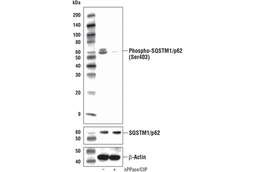 Western blot analysis of STF-66247-treated 786-O cell extracts, that were either untreated (-) or treated with Lambda Phosphatase plus Calf Intestinal Phosphatse ( λPPase/CIP; +), using Phospho-SQSTM1/p62 (Ser403) (D8D6T) Rabbit mAb (upper), total SQSTM1/p62 (D5L7G) Mouse mAb #88588 (middle), or β-Actin (D6A8) Rabbit mAb #8457 (lower).