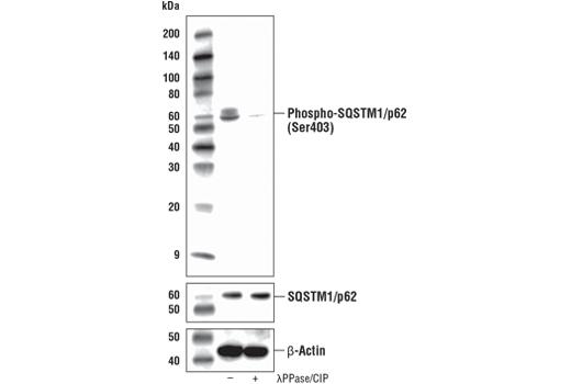 Monoclonal Antibody - Phospho-SQSTM1/p62 (Ser403) (D8D6T) Rabbit mAb, UniProt ID Q13501, Entrez ID 8878 #39786, Autophagy Signaling