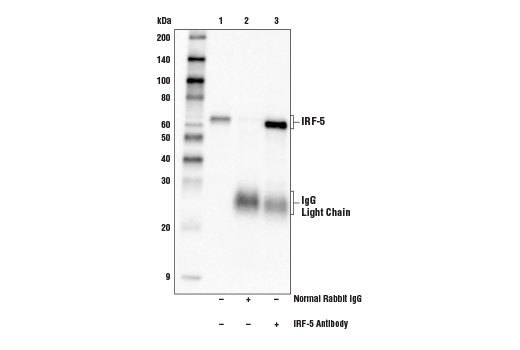 Immunoprecipitation of IRF-5 from HDLM-2 cell extracts. Lane 1 is 10% input, lane 2 is Normal Rabbit IgG #2729, and lane 3 is IRF-5 Antibody. Western blot analysis was performed using IRF-5 Antibody. Mouse Anti-Rabbit IgG (Light-Chain Specific) (D4W3E) mAb (HRP Conjugate) #93702 was used for detection.