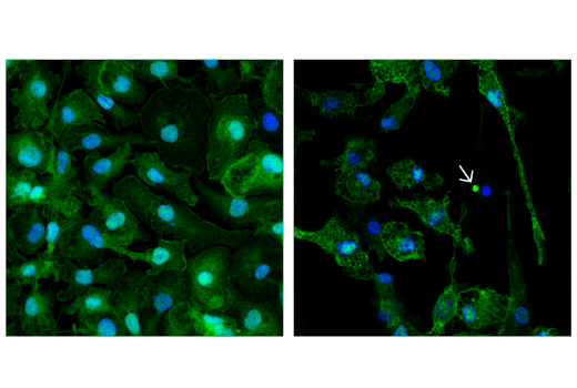 Confocal immunofluorescent analysis of mouse primary bone marrow-derived macrophages differentiated with mM-CSF (20 ng/ml, 8 d), either treated with Lipopolysaccharides (LPS) #14011 (50 ng/mL, overnight; left) or LPS (50 ng/mL, overnight) followed by Nigericin (10 μM, 2 hr; right), using ASC/TMS1 (D2W8U) Rabbit mAb (Mouse Specific) (Alexa Fluor<sup>®</sup> 647 Conjugate) (green pseudocolor). Blue = Hoechst 33342 #4082 (fluorescent DNA dye). Note the translocation of ASC to inflammasomes following stimulation with LPS and Nigericin (white arrow).