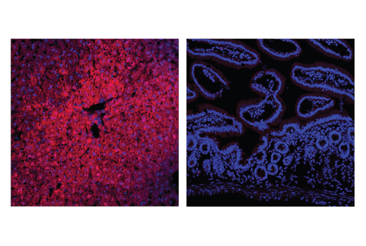 Confocal immunofluorescent analysis of mouse liver (positive; left) or small intestine (negative; right) using Arginase-1 (D4E3M™) Rabbit mAb (Alexa Fluor<sup>®</sup> 647 Conjugate) (red). Samples were mounted in ProLong<sup>®</sup> Gold Antifade Reagent with DAPI #8961 (blue).