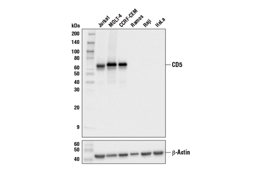 Western blot analysis of extracts from various cell lines using CD5 (E8X3S) XP<sup>®</sup> Rabbit mAb (upper) or β-Actin (D6A8) Rabbit mAb #8457 (lower).