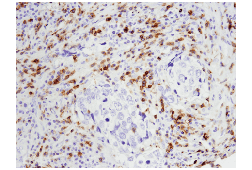 Immunohistochemical analysis of paraffin-embedded squamous cell carcinoma of the lung using CD5 (E8X3S) XP<sup>® </sup>Rabbit mAb.