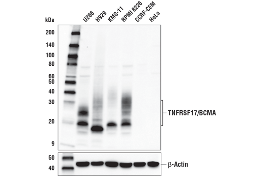 Western blot analysis of extracts from various cell lines using TNFRSF17/BCMA (E6D7B) Rabbit mAb (upper) and β-Actin (D6A8) Rabbit mAb #8457 (lower). As expected, TNFRSF17/BCMA protein expression is not detected in either HeLa or CCRF-CEM cells.