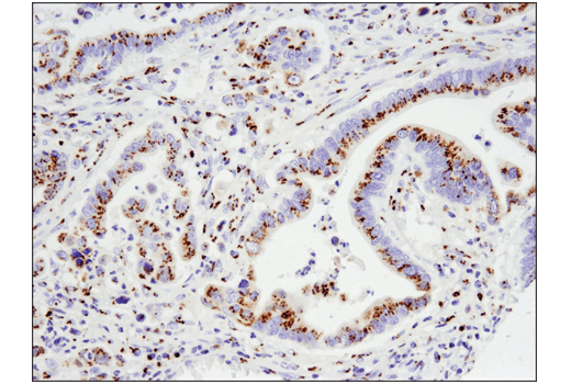 Immunohistochemical analysis of paraffin-embedded human colon carcinoma using FAM3C (D1S2D) XP<sup>®</sup> Rabbit mAb.