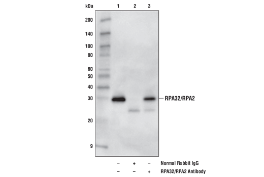 Polyclonal Antibody Immunoprecipitation Telomere Maintenance