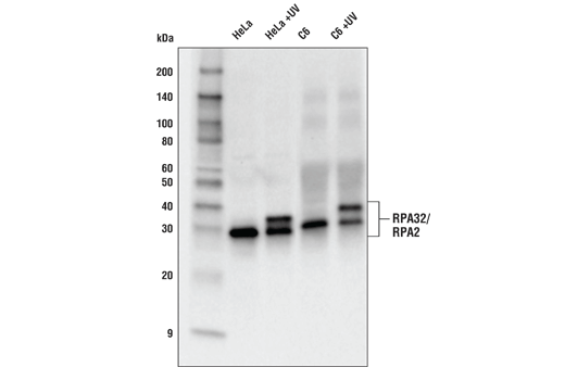 Western blot analysis of extracts from HeLa and C6, untreated or treated with UV (100mJ/cm<sup>2</sup>, 2 hr recovery), using RPA32/RPA2 Antibody.