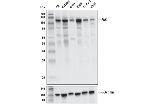 Western blot analysis of extracts from various cell lines using FAK (D5O7U) XP<sup>®</sup> Rabbit mAb (upper) or α-Actinin (D6F6) XP<sup>®</sup> Rabbit mAb #6487 (lower).