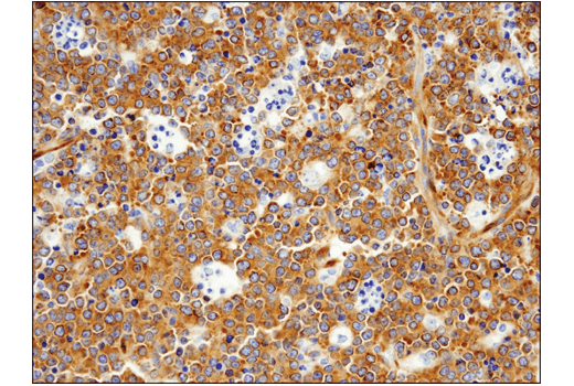 Immunohistochemical analysis of paraffin-embedded human non-Hodgkin's lymphoma using FAK (D5O7U) XP<sup>®</sup> Rabbit mAb.