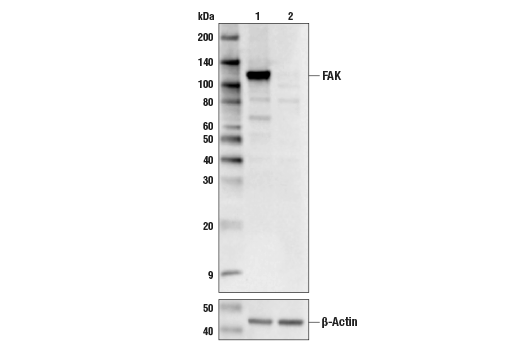 Western blot analysis of HEK293 Cell Extracts, untreated (-) or FAK knock-out (+) using FAK (D5O7U) XP® Rabbit mAb, #71433, (upper) or #8457 β-Actin (D6A8) Rabbit mAb (lower).
