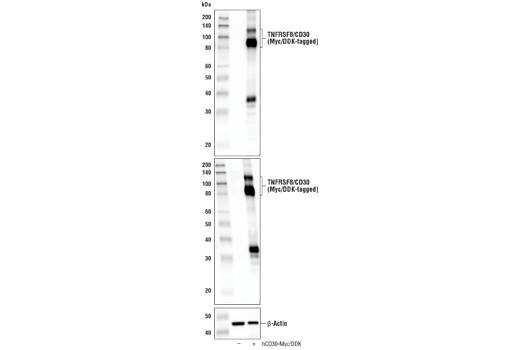 Western blot analysis of extracts from 293T cells, mock transfected (-) or transfected with a construct expressing Myc/DDK-tagged full-length human TNFRSF8/CD30 protein (hCD30-Myc/DDK; +), using TNFRSF8/CD30 (E1A6Y) Rabbit mAb (upper), DYKDDDDK Tag Antibody #2368 (middle), and β-Actin (D6A8) Rabbit mAb #8457 (lower).