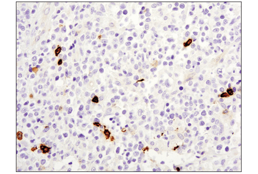Image 48: Human T Cell Co-inhibitory and Co-stimulatory Receptor IHC Antibody Sampler Kit