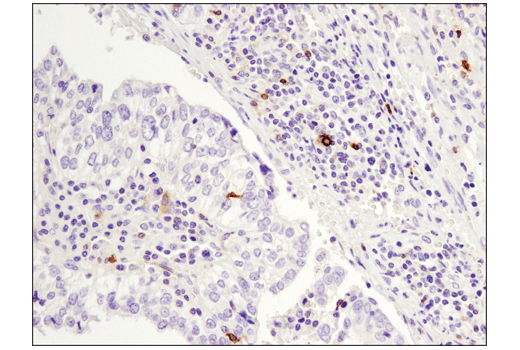 Immunohistochemical analysis of paraffin-embedded human papillary carcinoma of the breast using OX40 (E9U7O) XP<sup>®</sup> Rabbit mAb.