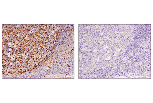 Immunohistochemical analysis of paraffin-embedded human tonsil using Clusterin (D7N2K) XP<sup>®</sup> Rabbit mAb in the presence of control peptide (left) or antigen-specific peptide (right).