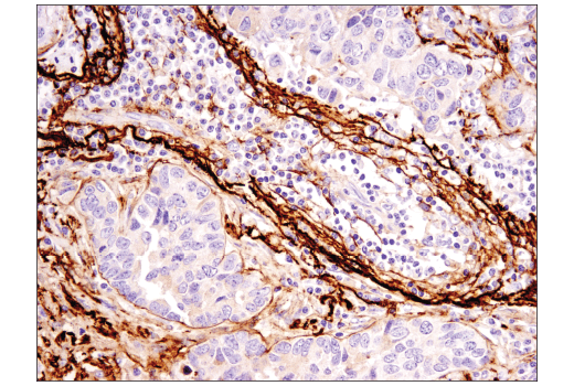 Immunohistochemical analysis of paraffin-embedded human non-small cell lung carcinoma using Clusterin (D7N2K) XP<sup>®</sup> Rabbit mAb.