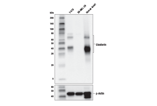 Western blot analysis of extracts from indicated human cell lines and human tonsil using Clusterin (D7N2K) XP<sup>®</sup> Rabbit mAb (upper) and β-Actin (D6A8) Rabbit mAb #8457 (lower).