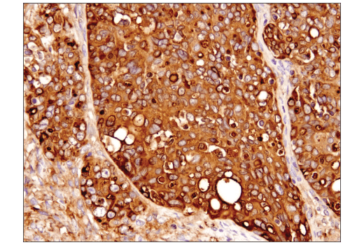 Immunohistochemical analysis of paraffin-embedded human serous papillary carcinoma of the ovary using Clusterin (D7N2K) XP<sup>®</sup> Rabbit mAb.