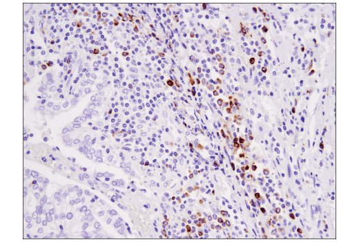 Image 25: Mouse Immune Cell Phenotyping IHC Antibody Sampler Kit