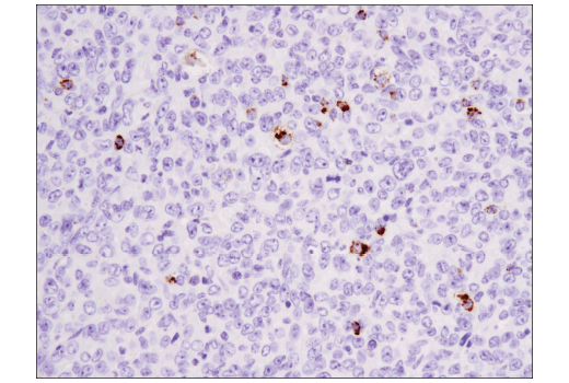 Immunohistochemical analysis of paraffin-embedded mouse 4T1 mammary tumor using Granzyme B (D6E9W) Rabbit mAb.