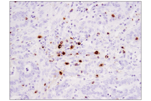 Immunohistochemical analysis of paraffin-embedded human colon carcinoma using Granzyme B (D6E9W) Rabbit mAb.