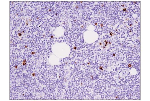 Image 40: Mouse Immune Cell Phenotyping IHC Antibody Sampler Kit
