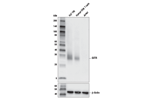 Western blot analysis of extracts from HuT 102, human CD8<sup>+</sup> T cells, and Jurkat cells using GITR (D5V7P) Rabbit mAb(upper), and β-Actin (D6A8) Rabbit mAb #8457 (lower). CD8<sup>+</sup> T cells were purified from human blood and stimulated for 9 days using beads coated with CD3 and CD28 antibodies in the presence of human interleukin-2 (hIL-2) #8907 (6.7 ng/ml).