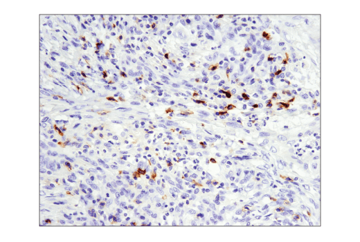 Immunohistochemical analysis of paraffin-embedded human colon carcinoma using GITR (D5V7P) Rabbit mAb performed on the Leica® BOND™ Rx.