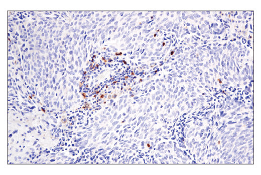 Immunohistochemical analysis of paraffin-embedded human lung adenocarcinoma using GITR (D5V7P) Rabbit mAb.