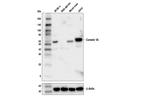 Western blot analysis of extracts from various cells and tissues using Coronin 1A (D6K5B) XP<sup>®</sup> Rabbit mAb (upper) or β-Actin (D6A8) Rabbit mAb #8457 (lower).